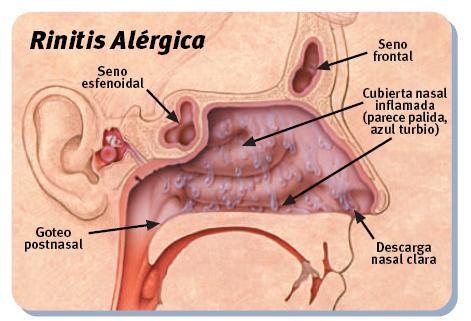 Rinitis Cuidados Con Paciente Del Alérgica fWWwtq81
